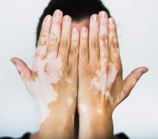 Choix pour un don Vitiligo