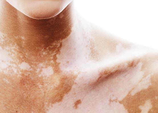 Exemple de patient atteint Vitiligo